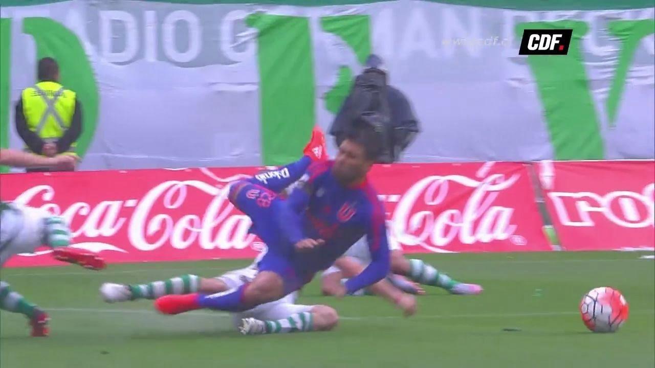 Photo of VIDEO: Así fue la brutal fractura que sufrió Jonathan Zacaría en el partido de la «U» frente a Temuco