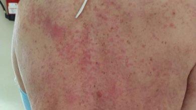 Photo of Estos son los 8 tipos de piel que son síntomas del COVID